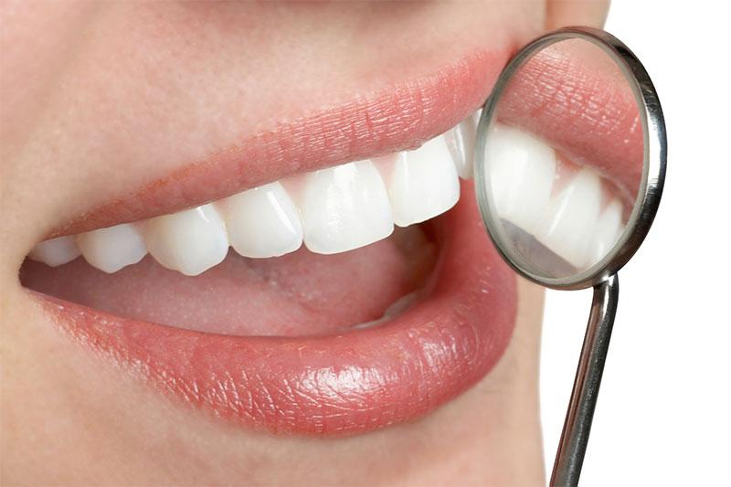 OC Elite Dental Dental Offer