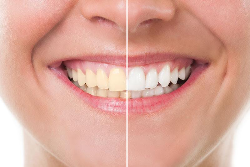 Professional Teeth Whitening - OC Elite Dental, Anaheim Dentist